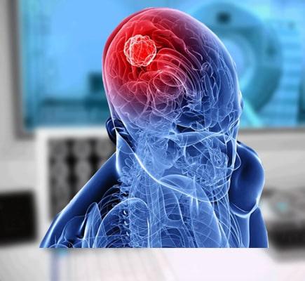 МРТ головы и сосудов