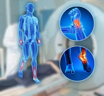 МРТ верхних и нижних конечностей