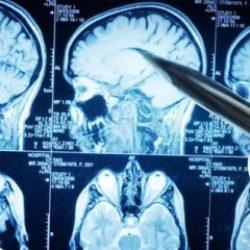 Скидка на МРТ головного мозга