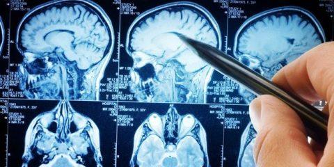 МРТ головного мозга по акции
